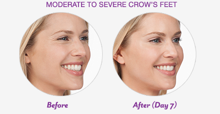Botox Cosmetic Before and After Crows Feet