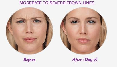 Botox Cosmetic Before and After Frown Lines