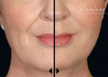 Restylane Before and After age 56