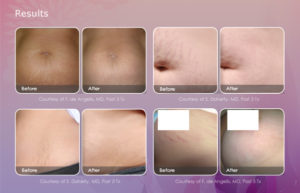 stretch-mark-email-results-600x385